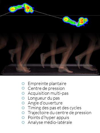 Examen podométrique dynamique
