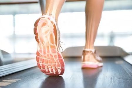 Traitement par orthèses plantaires d'une instabilité chronique de cheville chez le sportif