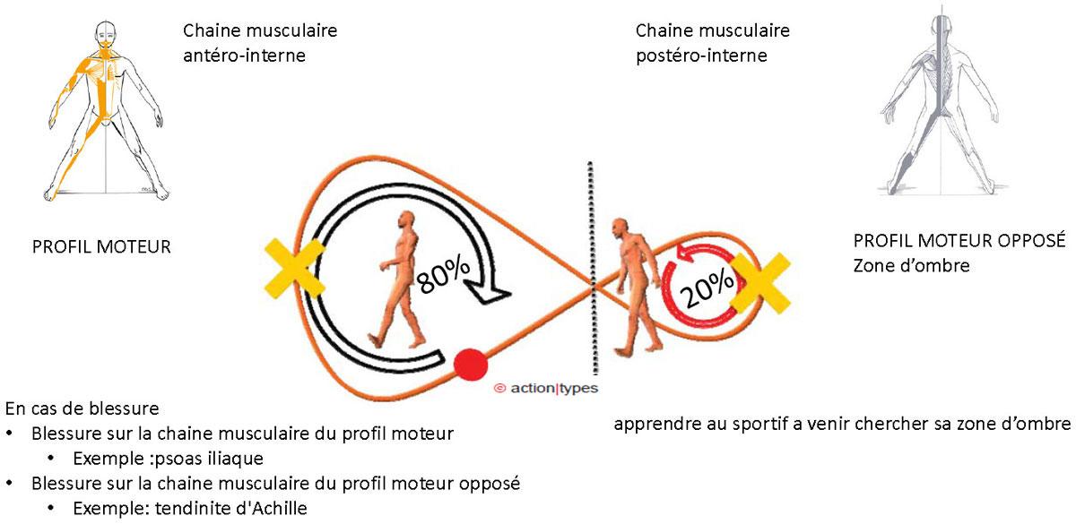 Préférences motrices et blessure(s)